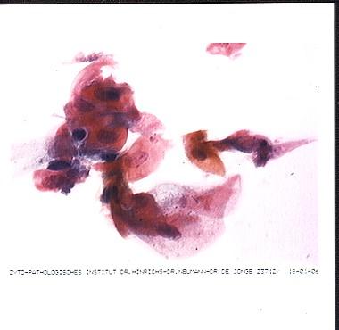 Beschreibung: http://www.papillomviren.de/assets/images/k.f._10.03.04_pap_III_v_d_therapie.jpg