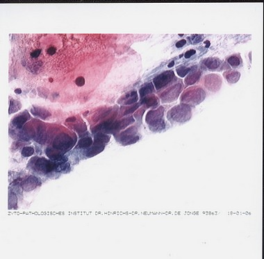 Beschreibung: http://www.papillomviren.de/assets/images/m.m._pap_iVa_posi_30.09.03_v_therapie.jpg